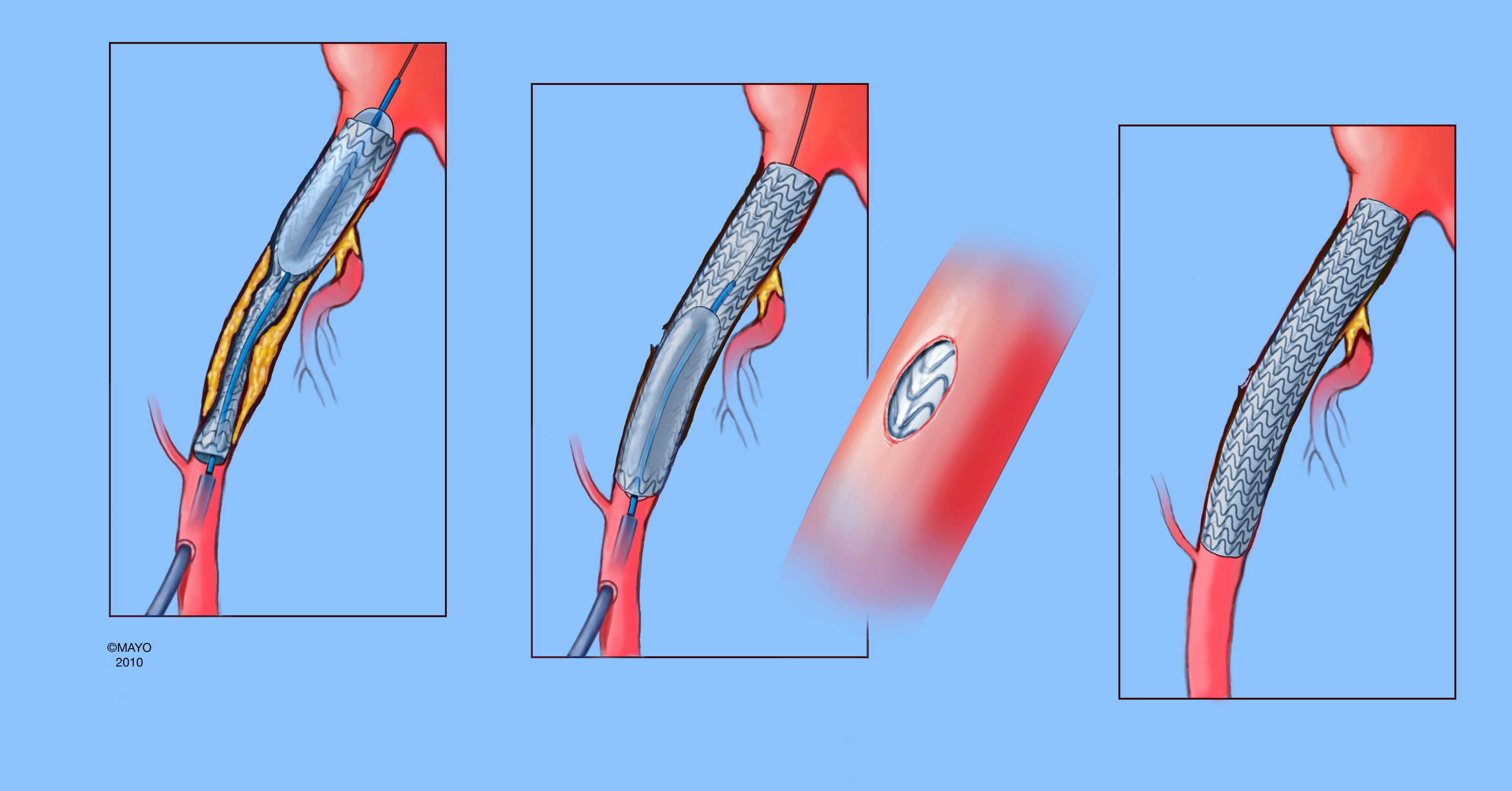 Scvs Endoconduits To Facilitate Endovascular Repair Of Aortic