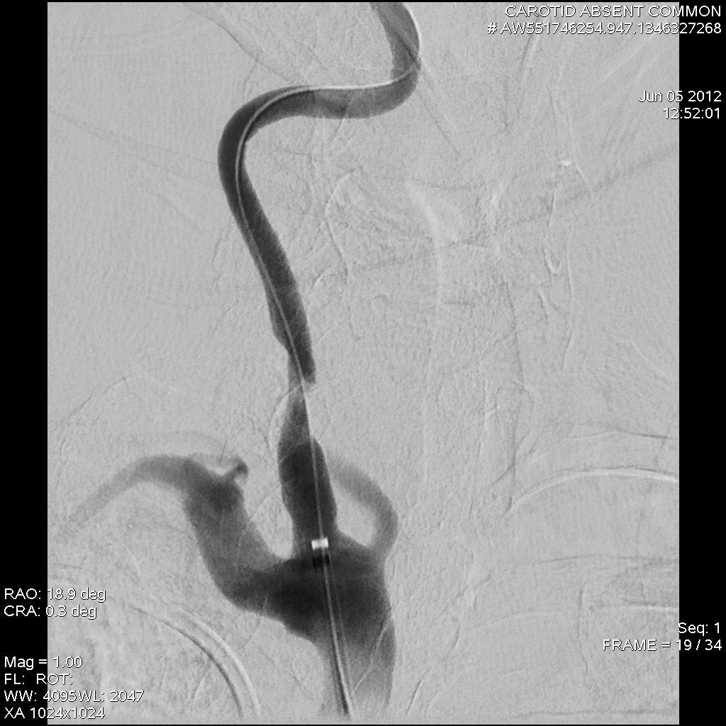 SCVS - Common Carotid Artery Agenesis with Symptomatic Internal ...